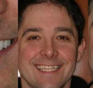 male patient before and after treatment